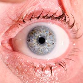 Pose prothèse oculaire laboratoire Dencott