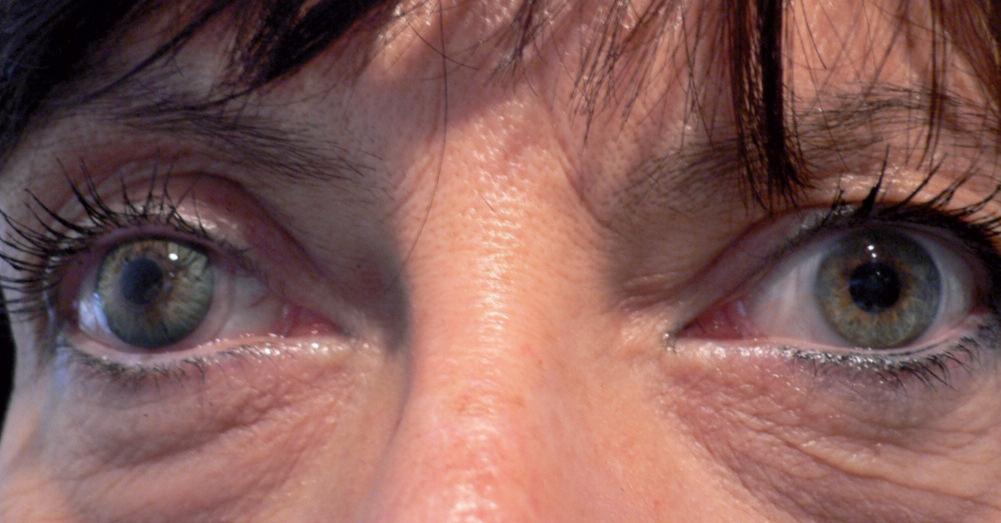 lentiile souple hydrophile à iris peint et pupille noire