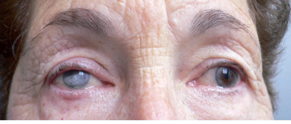 esthécolor lentille souple à iris peint avant