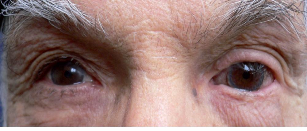 lentille rigide à iris peint avec pupille optique