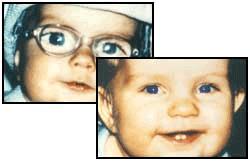 Centre d'adaptation spécialisé en lentille de contact enfant laboratoire Dencott